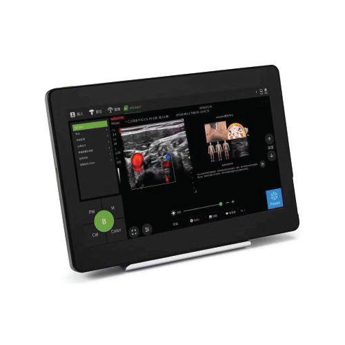 Piloter Smart Tablet ultrasound medical device by Wisonic